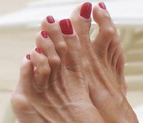 Vergroeide tenen