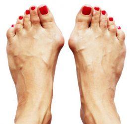 Spastische voeten